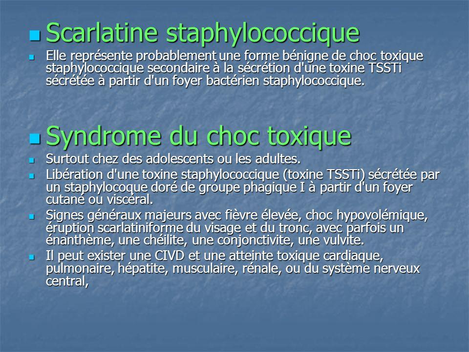 Scarlatine staphylococcique Scarlatine staphylococcique Elle représente probablement une forme bénigne de choc toxique staphylococcique secondaire à l
