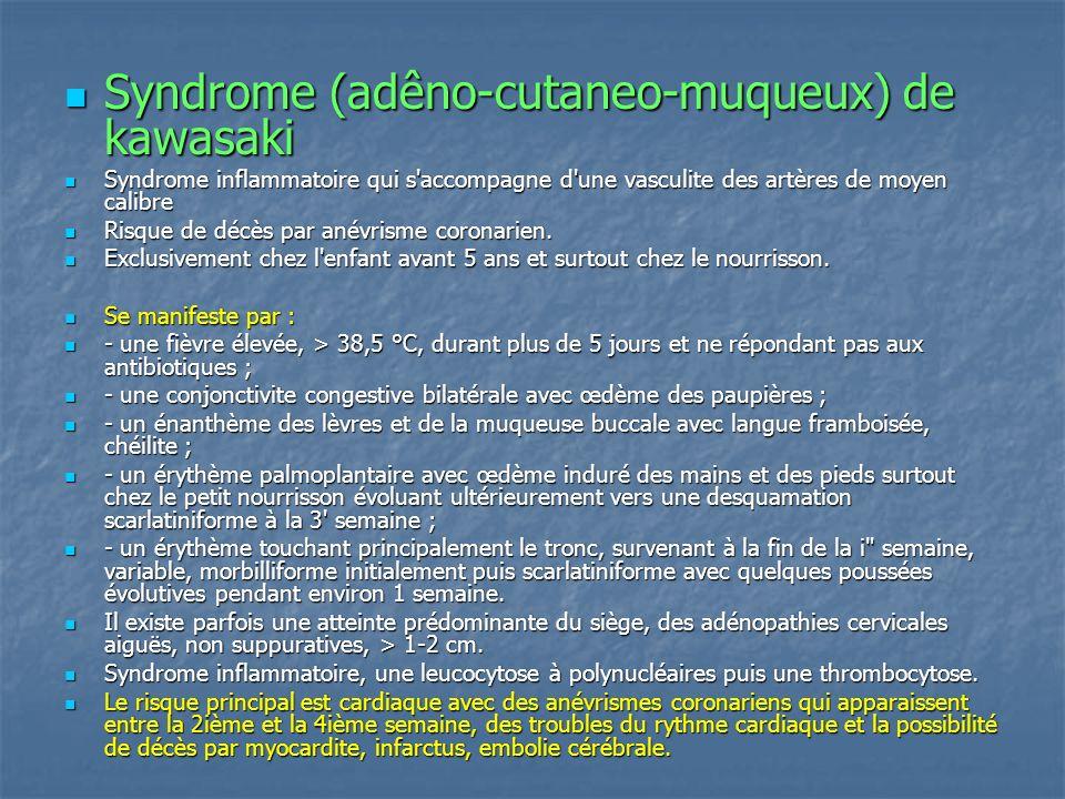 Syndrome (adêno-cutaneo-muqueux) de kawasaki Syndrome (adêno-cutaneo-muqueux) de kawasaki Syndrome inflammatoire qui s'accompagne d'une vasculite des