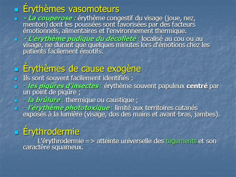 Érythèmes vasomoteurs Érythèmes vasomoteurs - La couperose : érythème congestif du visage (joue, nez, menton) dont les poussées sont favorisées par de
