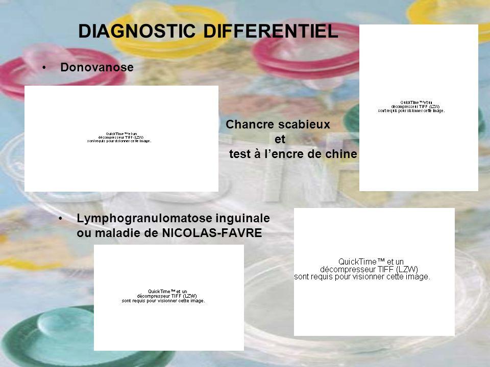 DIAGNOSTIC DIFFERENTIEL Donovanose Lymphogranulomatose inguinale ou maladie de NICOLAS-FAVRE Chancre scabieux et test à lencre de chine