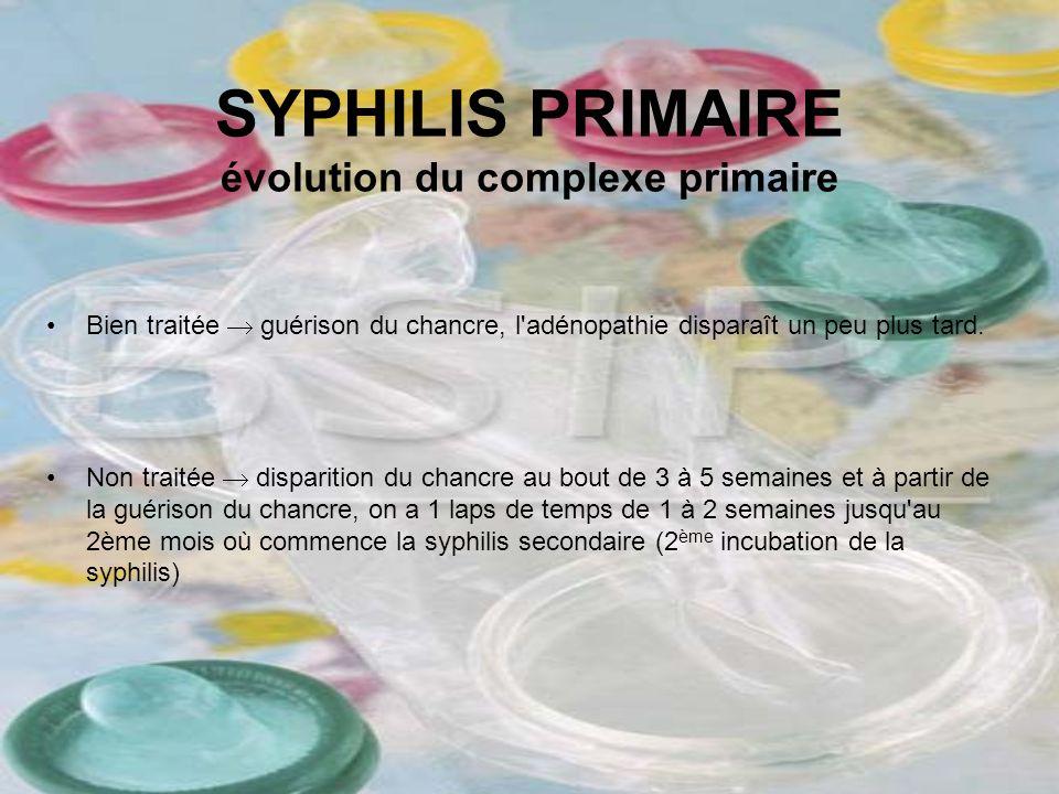 SYPHILIS PRIMAIRE évolution du complexe primaire Bien traitée guérison du chancre, l'adénopathie disparaît un peu plus tard. Non traitée disparition d