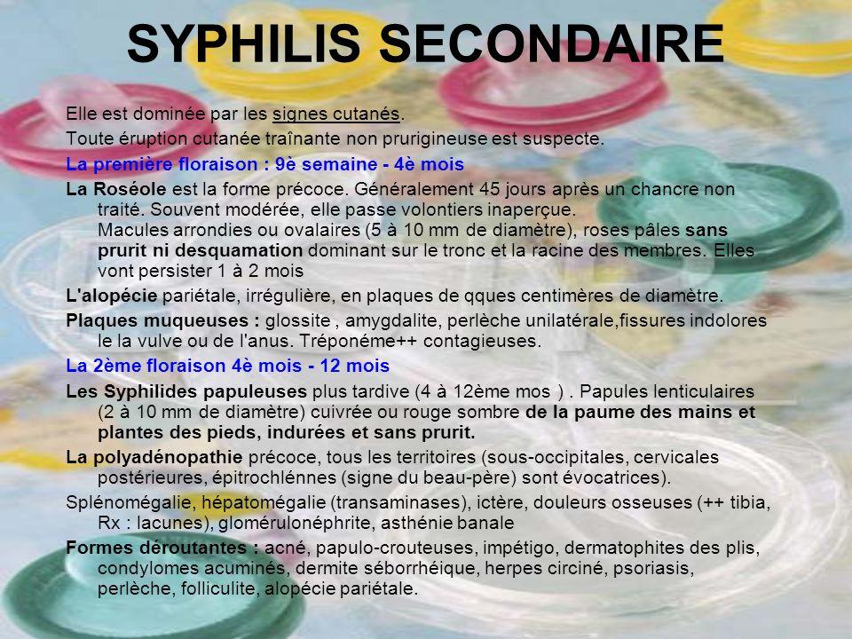 SYPHILIS SECONDAIRE Elle est dominée par les signes cutanés. Toute éruption cutanée traînante non prurigineuse est suspecte. La première floraison : 9