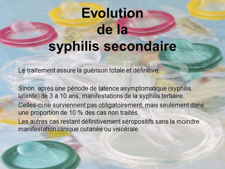 Evolution de la syphilis secondaire Le traitement assure la guérison totale et définitive. Sinon, après une période de latence asymptomatique (syphili