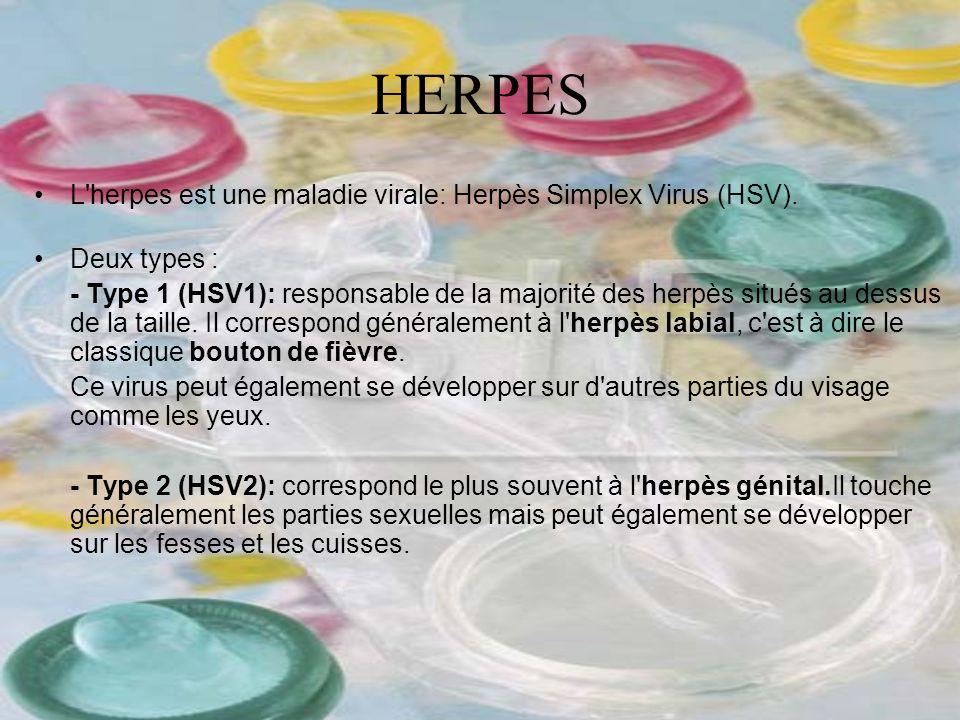 HERPES L'herpes est une maladie virale: Herpès Simplex Virus (HSV). Deux types : - Type 1 (HSV1): responsable de la majorité des herpès situés au dess
