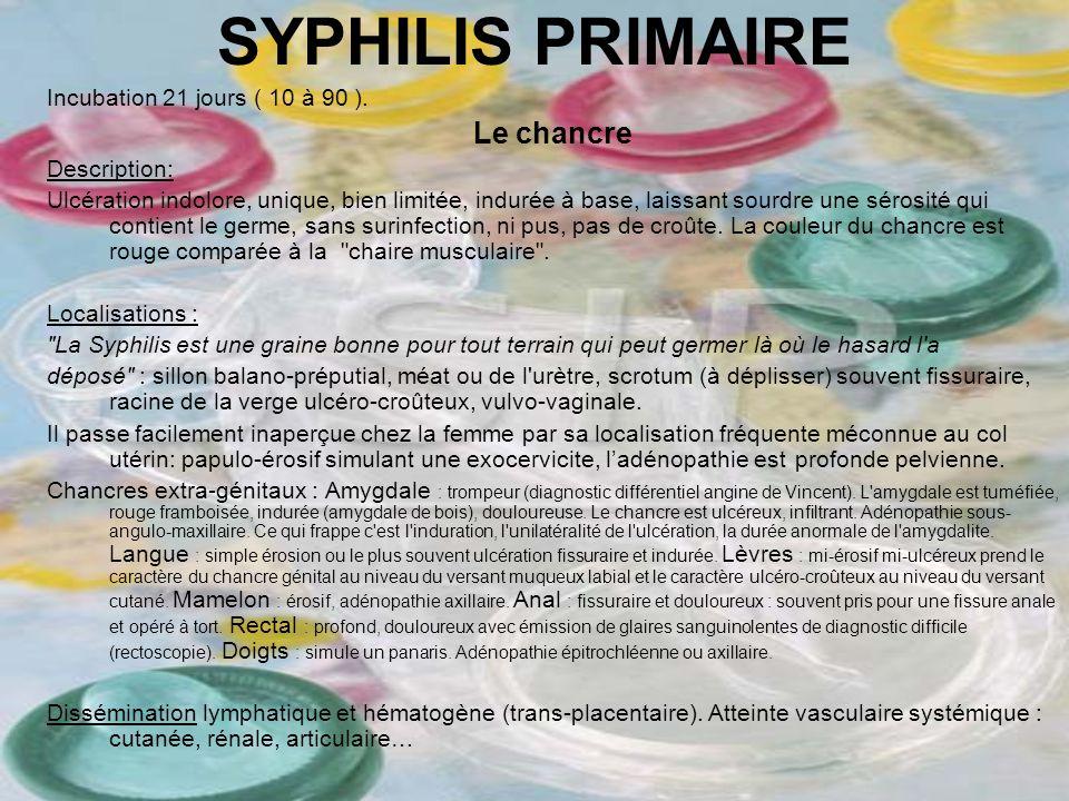 SYPHILIS PRIMAIRE Incubation 21 jours ( 10 à 90 ). Le chancre Description: Ulcération indolore, unique, bien limitée, indurée à base, laissant sourdre