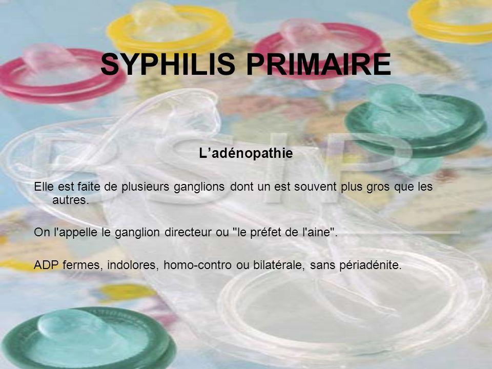 SYPHILIS PRIMAIRE Ladénopathie Elle est faite de plusieurs ganglions dont un est souvent plus gros que les autres. On l'appelle le ganglion directeur
