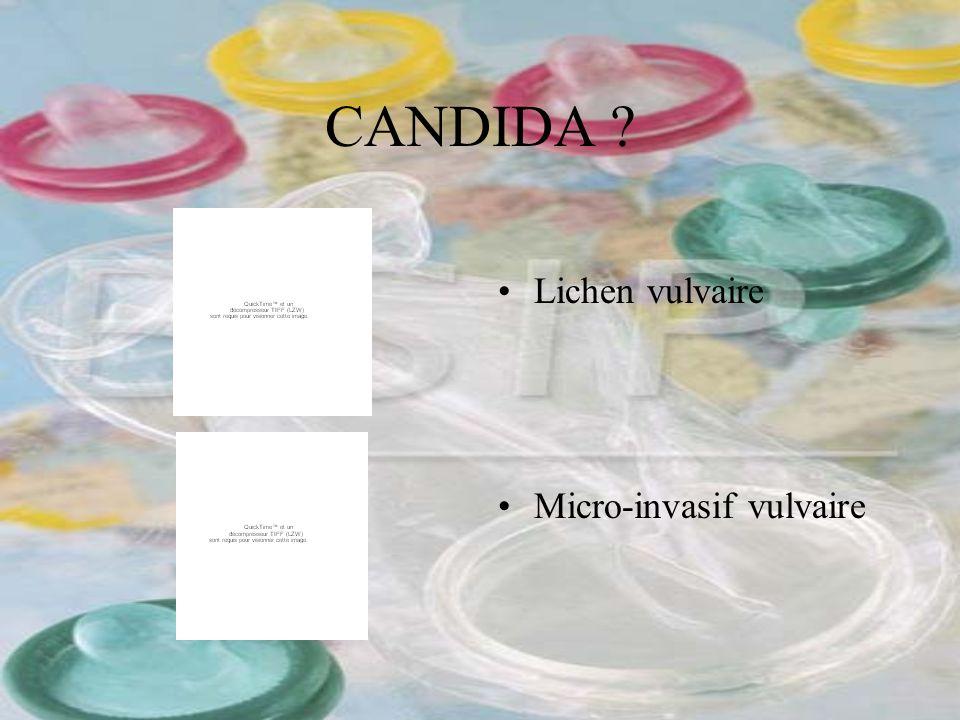 CANDIDA ? Lichen vulvaire Micro-invasif vulvaire