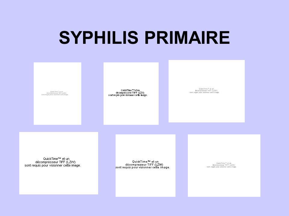 SYPHILIS PRIMAIRE