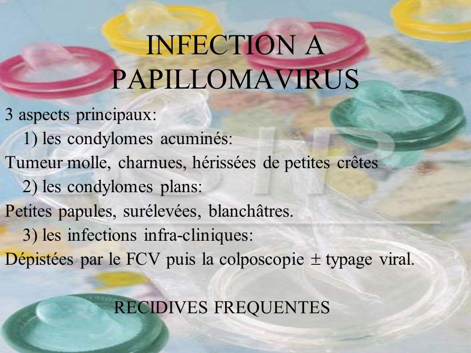 INFECTION A PAPILLOMAVIRUS 3 aspects principaux: 1) les condylomes acuminés: Tumeur molle, charnues, hérissées de petites crêtes 2) les condylomes pla