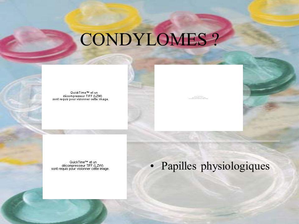 CONDYLOMES ? Papilles physiologiques
