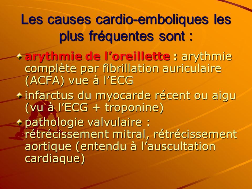 Les causes cardio-emboliques les plus fréquentes sont : arythmie de loreillette : arythmie complète par fibrillation auriculaire (ACFA) vue à lECG inf