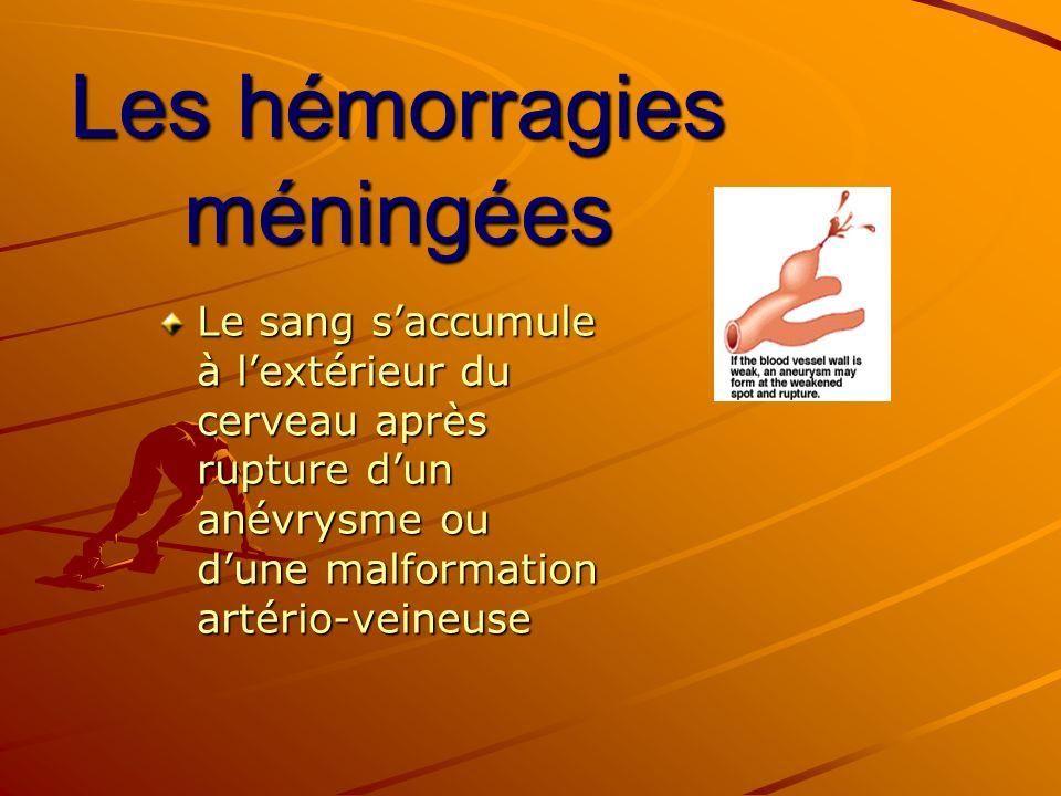 Les hémorragies méningées Le sang saccumule à lextérieur du cerveau après rupture dun anévrysme ou dune malformation artério-veineuse
