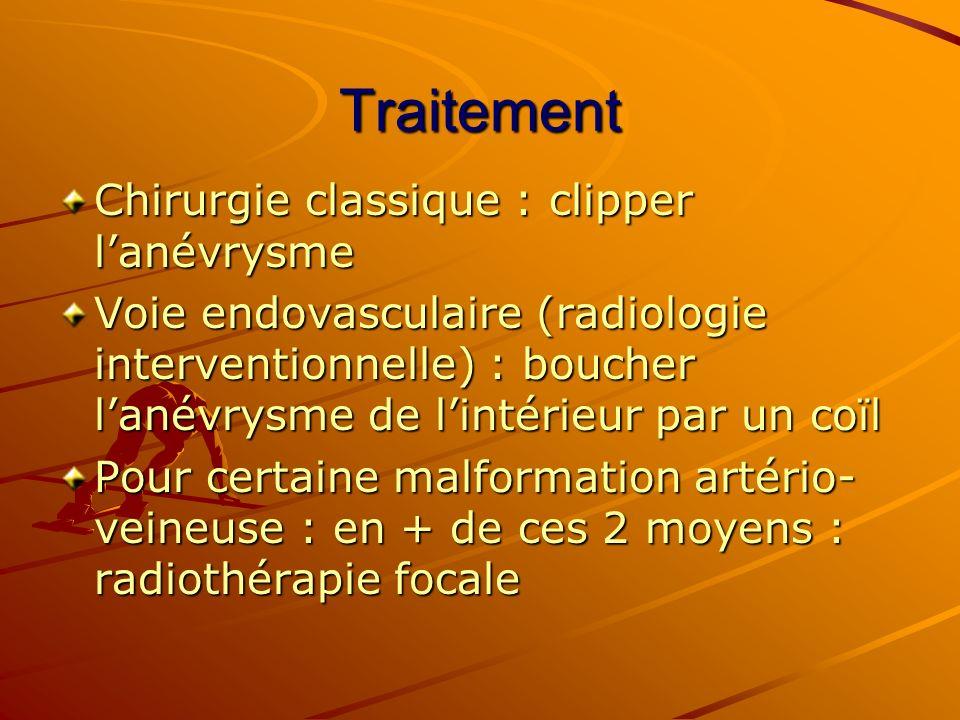 Traitement Chirurgie classique : clipper lanévrysme Voie endovasculaire (radiologie interventionnelle) : boucher lanévrysme de lintérieur par un coïl