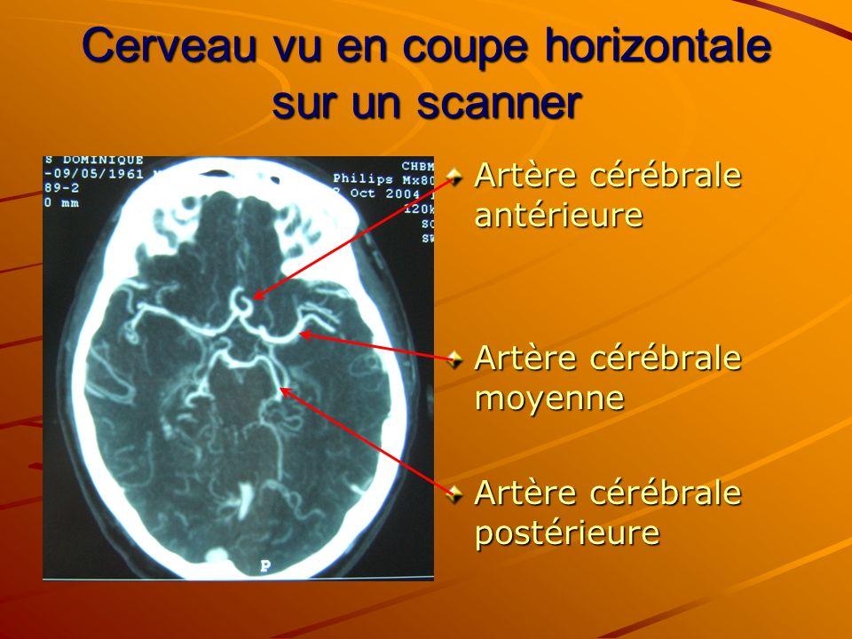 Cerveau vu en coupe horizontale sur un scanner Artère cérébrale antérieure Artère cérébrale moyenne Artère cérébrale postérieure