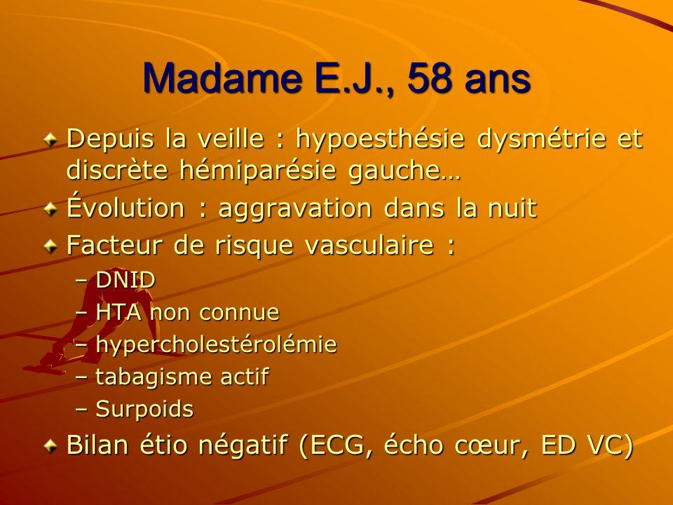 Madame E.J., 58 ans Depuis la veille : hypoesthésie dysmétrie et discrète hémiparésie gauche… Évolution : aggravation dans la nuit Facteur de risque v