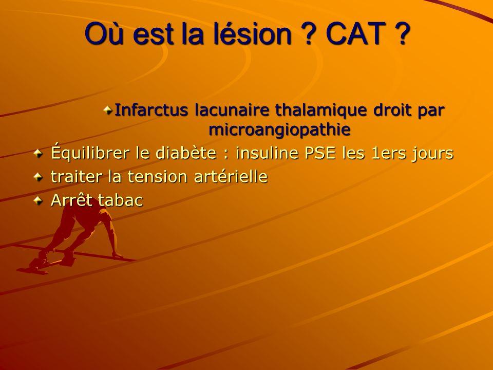 Où est la lésion ? CAT ? Infarctus lacunaire thalamique droit par microangiopathie Équilibrer le diabète : insuline PSE les 1ers jours traiter la tens