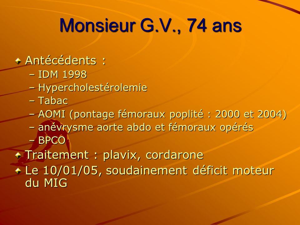 Monsieur G.V., 74 ans Antécédents : –IDM 1998 –Hypercholestérolemie –Tabac –AOMI (pontage fémoraux poplité : 2000 et 2004) –anévrysme aorte abdo et fé