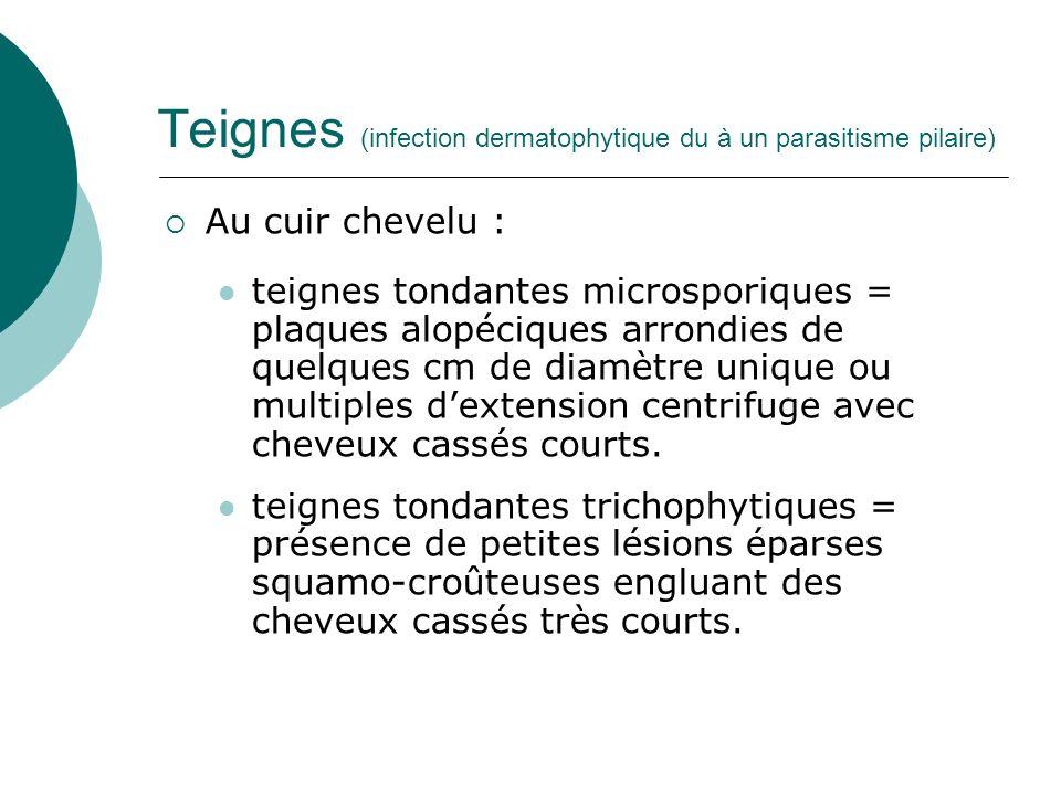 Teignes (infection dermatophytique du à un parasitisme pilaire) Au cuir chevelu : teignes tondantes microsporiques = plaques alopéciques arrondies de