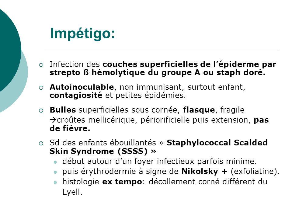 Impétigo: Infection des couches superficielles de lépiderme par strepto ß hémolytique du groupe A ou staph doré. Autoinoculable, non immunisant, surto