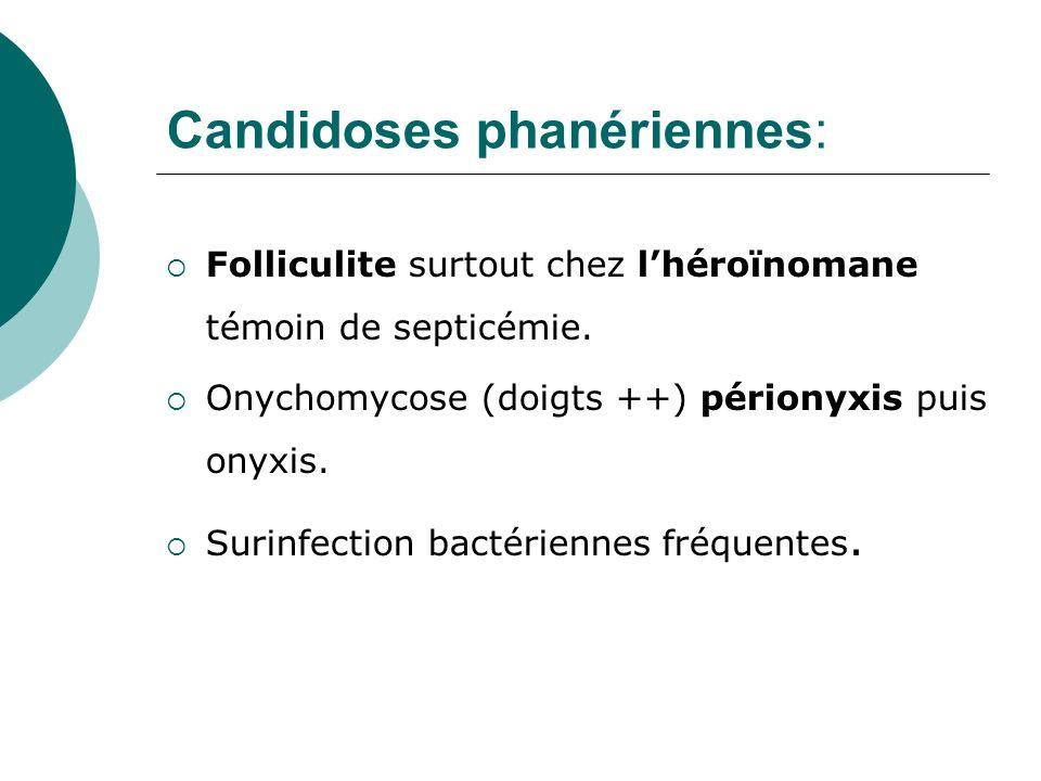 Candidoses phanériennes: Folliculite surtout chez lhéroïnomane témoin de septicémie. Onychomycose (doigts ++) périonyxis puis onyxis. Surinfection bac