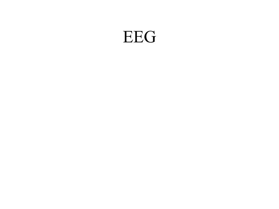 EEG comme outil biométrique Modèle AR X(k)= a i X(k-i)+E k