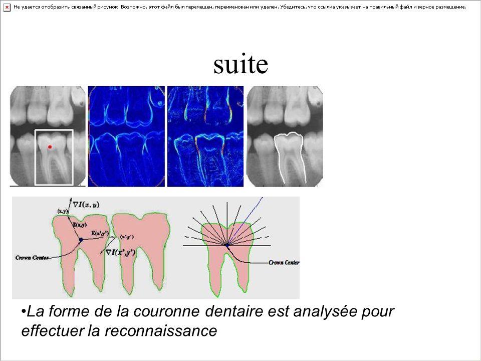 « Tooth-print » L empreinte dentaire (morsure) n est pas vraiment considérée comme une technique biométrique car elle n est pas encore complètement automatisée, partant d une capture sur un sujet vivant (c est plutôt du domaine de la médecine légale), et la question de l unicité des empreintes dentaires n est toujours pas établies.