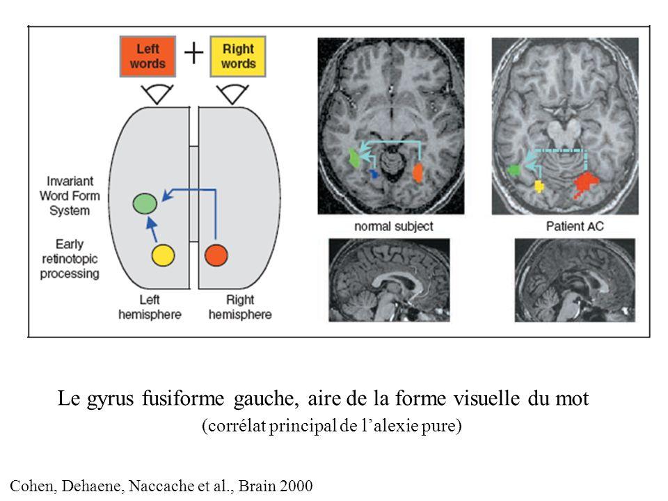 Le gyrus fusiforme gauche, aire de la forme visuelle du mot (corrélat principal de lalexie pure) Cohen, Dehaene, Naccache et al., Brain 2000