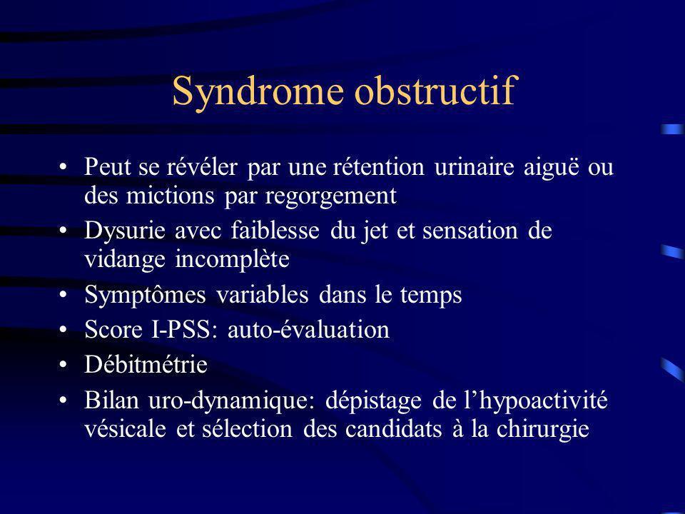 Syndrome obstructif Peut se révéler par une rétention urinaire aiguë ou des mictions par regorgement Dysurie avec faiblesse du jet et sensation de vid