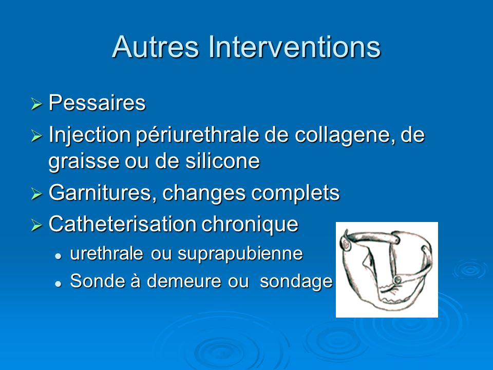 Autres Interventions Pessaires Pessaires Injection périurethrale de collagene, de graisse ou de silicone Injection périurethrale de collagene, de grai