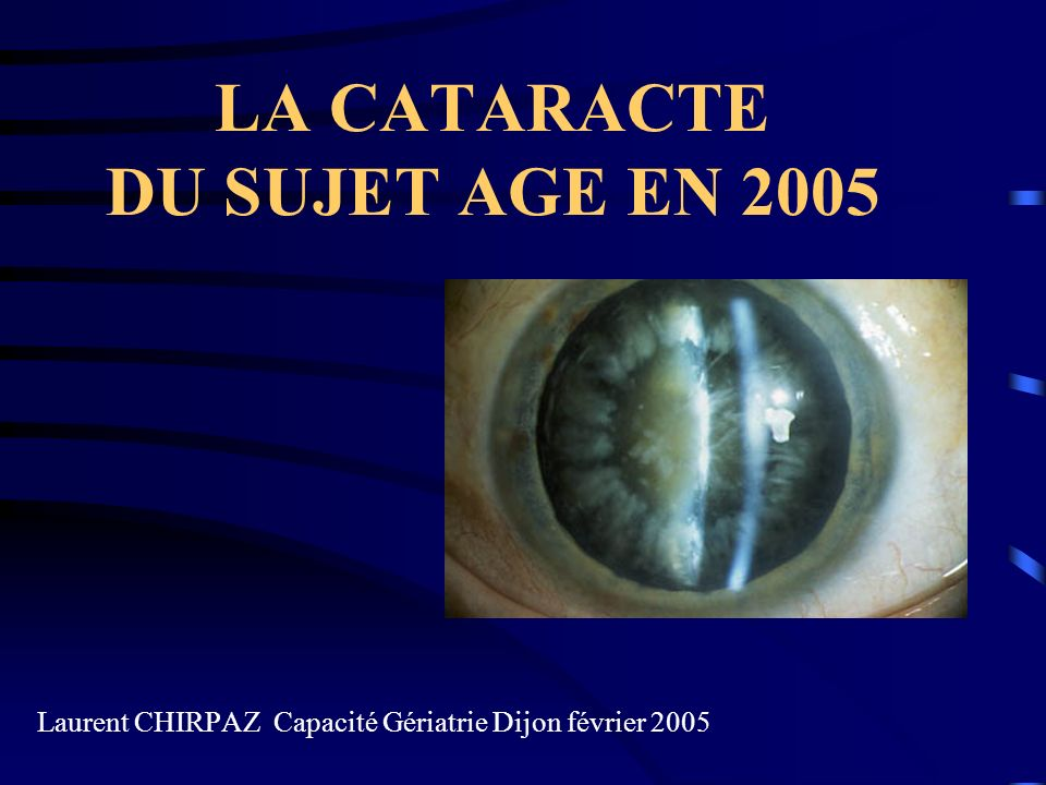 LA PRISE EN CHARGE DE LA CATARACTE EN 2005 ENJEUX SOCIO ECONOMIQUES INDICATIONS CHIRURGICALES TECHNIQUES CHIRURGICALES EN 2005 TYPE DANESTHESIE EN 2005 PROBLEME DE LA CATARACTE SECONDAIRE QUELLE SURVEILLANCE POST OPERATOIRE EVOLUTIONS A VENIR L.