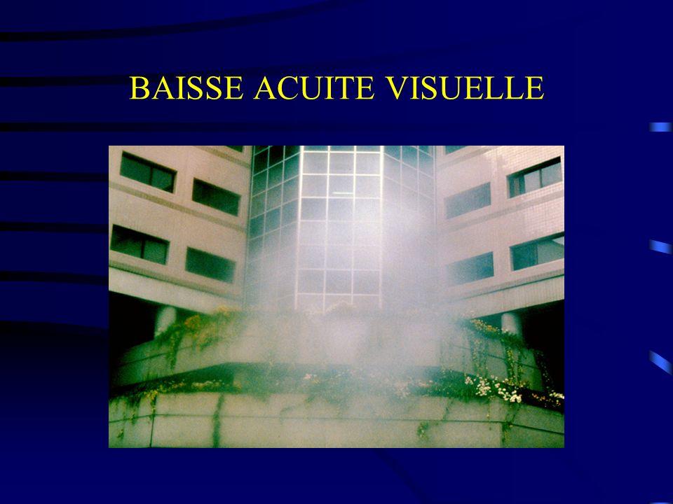 BAISSE ACUITE VISUELLE