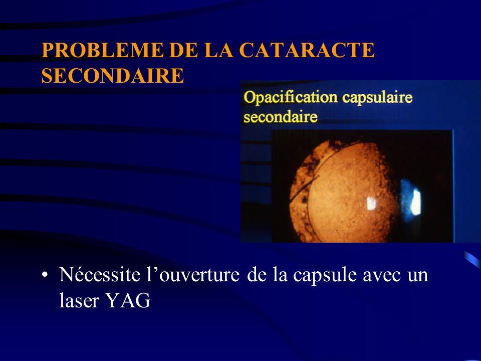 PROBLEME DE LA CATARACTE SECONDAIRE Nécessite louverture de la capsule avec un laser YAG