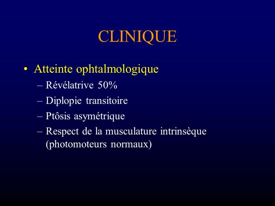 CLINIQUE Atteinte ophtalmologique –Révélatrive 50% –Diplopie transitoire –Ptôsis asymétrique –Respect de la musculature intrinsèque (photomoteurs norm