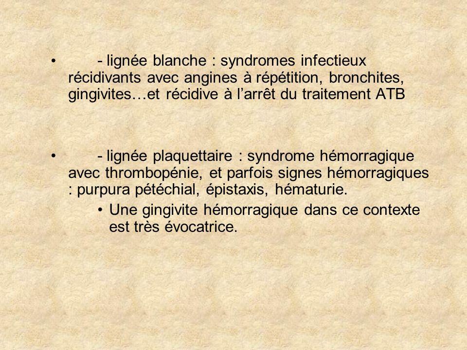 B) Signes de prolifération médullaire - adénopathies superficielles : cervicales et inguinales surtout,parfois splénomégalie et hépatomégalie associées - signes neurologiques : (surtout quand LA lymphoblastique) avec méningites leucémiques, paralyse des nerfs crâniens (PF le plus souvent) - douleurs osseuses - lésions cutanées : (surtout dans LAL), avec hématodermies, proliférations gingivales