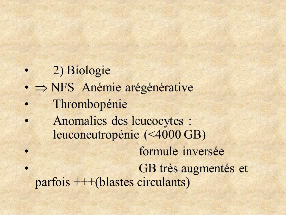 2) Biologie NFSAnémie arégénérative Thrombopénie Anomalies des leucocytes : leuconeutropénie (<4000 GB) formule inversée GB très augmentés et parfois