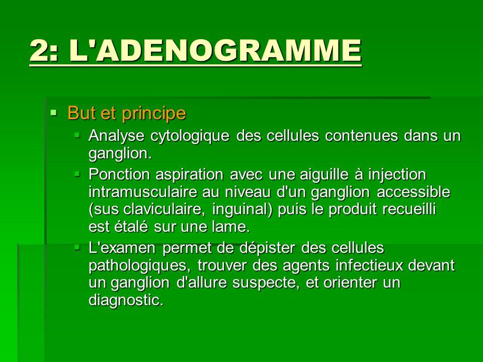 2: L'ADENOGRAMME But et principe But et principe Analyse cytologique des cellules contenues dans un ganglion. Analyse cytologique des cellules contenu