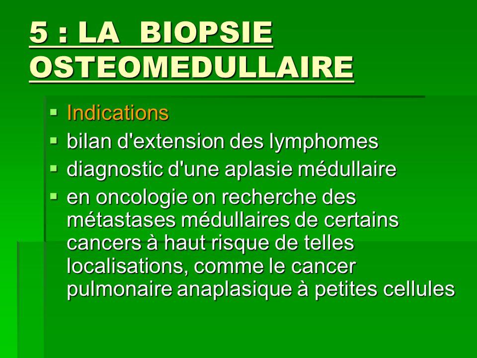 5 : LA BIOPSIE OSTEOMEDULLAIRE Indications Indications bilan d'extension des lymphomes bilan d'extension des lymphomes diagnostic d'une aplasie médull