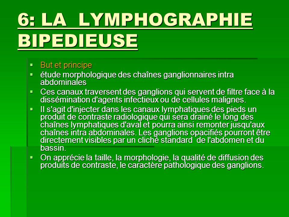 6: LA LYMPHOGRAPHIE BIPEDIEUSE But et principe But et principe étude morphologique des chaînes ganglionnaires intra abdominales étude morphologique de