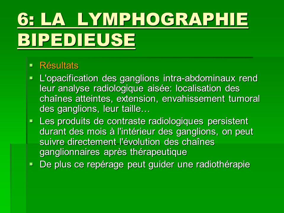 6: LA LYMPHOGRAPHIE BIPEDIEUSE Résultats Résultats L'opacification des ganglions intra-abdominaux rend leur analyse radiologique aisée: localisation d