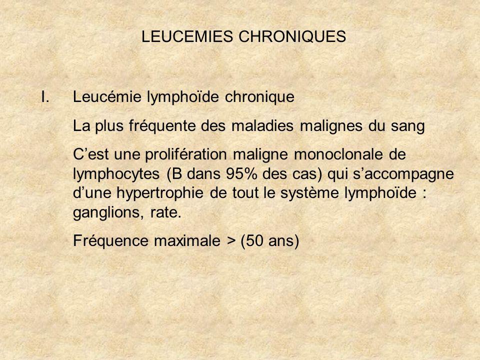 LEUCEMIES CHRONIQUES I.Leucémie lymphoïde chronique La plus fréquente des maladies malignes du sang Cest une prolifération maligne monoclonale de lymp
