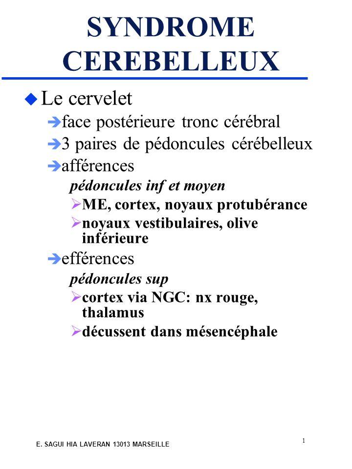 1 E. SAGUI HIA LAVERAN 13013 MARSEILLE SYNDROME CEREBELLEUX u Le cervelet face postérieure tronc cérébral 3 paires de pédoncules cérébelleux afférence