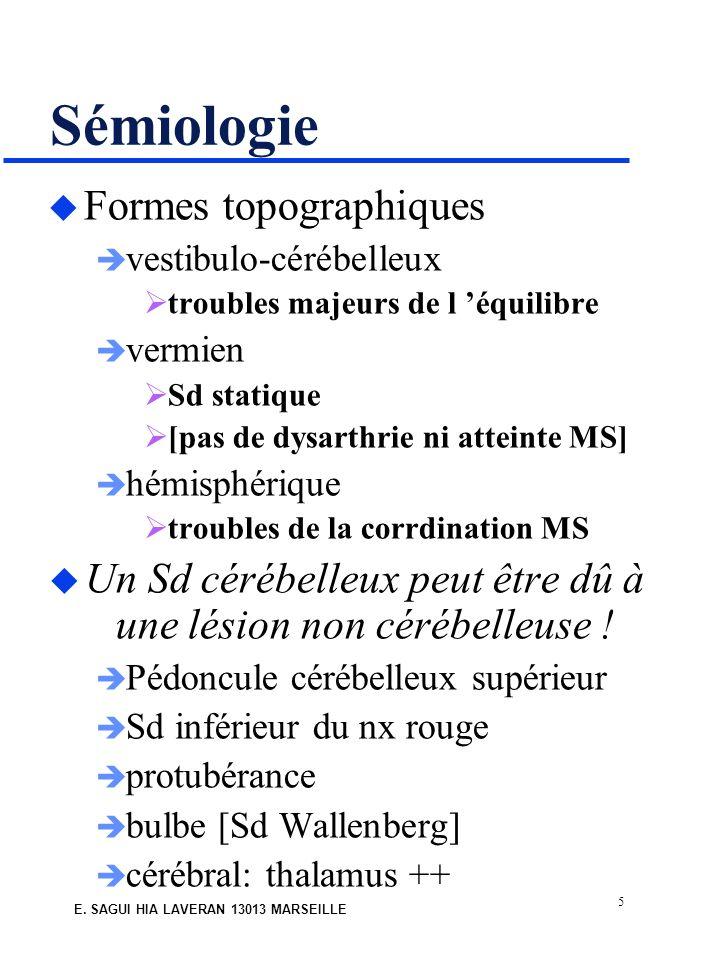 5 E. SAGUI HIA LAVERAN 13013 MARSEILLE Sémiologie u Formes topographiques vestibulo-cérébelleux troubles majeurs de l équilibre vermien Sd statique [p