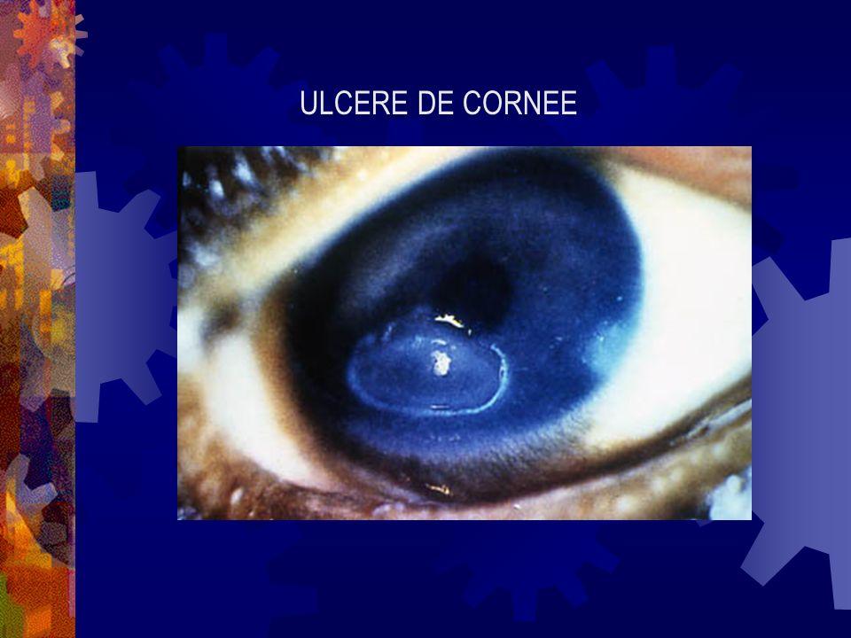 ULCERE DE CORNEE
