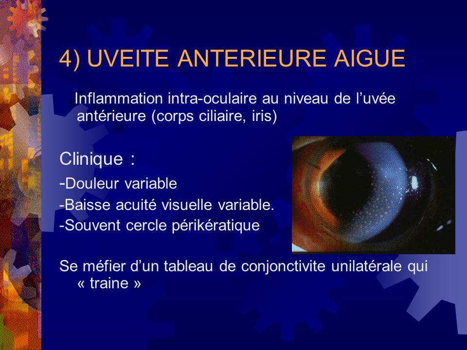 4) UVEITE ANTERIEURE AIGUE Inflammation intra-oculaire au niveau de luvée antérieure (corps ciliaire, iris) Clinique : - Douleur variable -Baisse acui