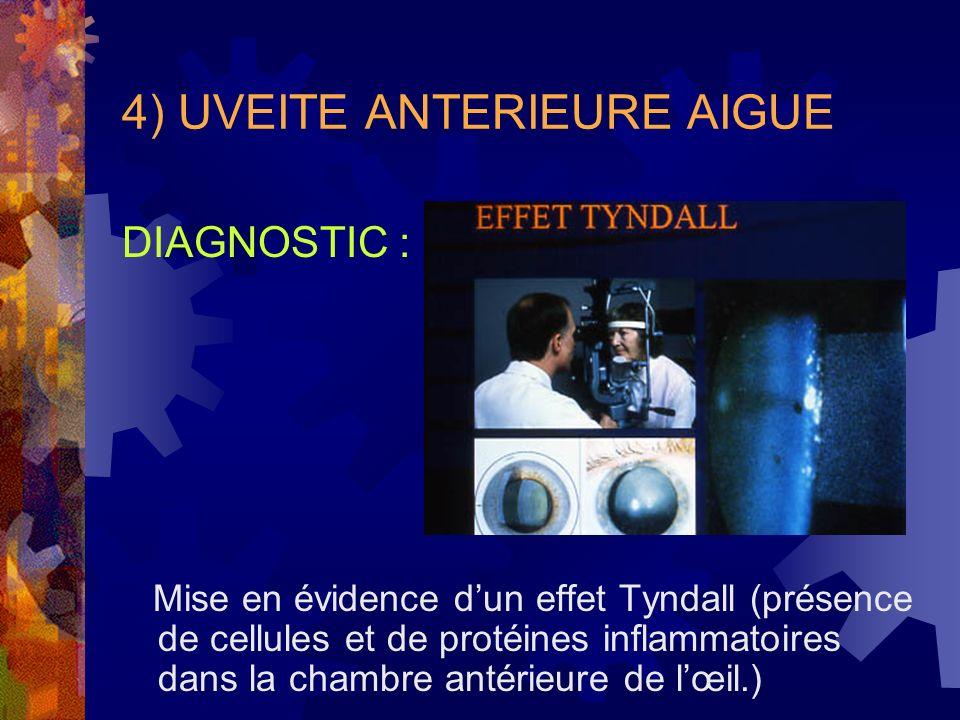4) UVEITE ANTERIEURE AIGUE DIAGNOSTIC : Mise en évidence dun effet Tyndall (présence de cellules et de protéines inflammatoires dans la chambre antéri