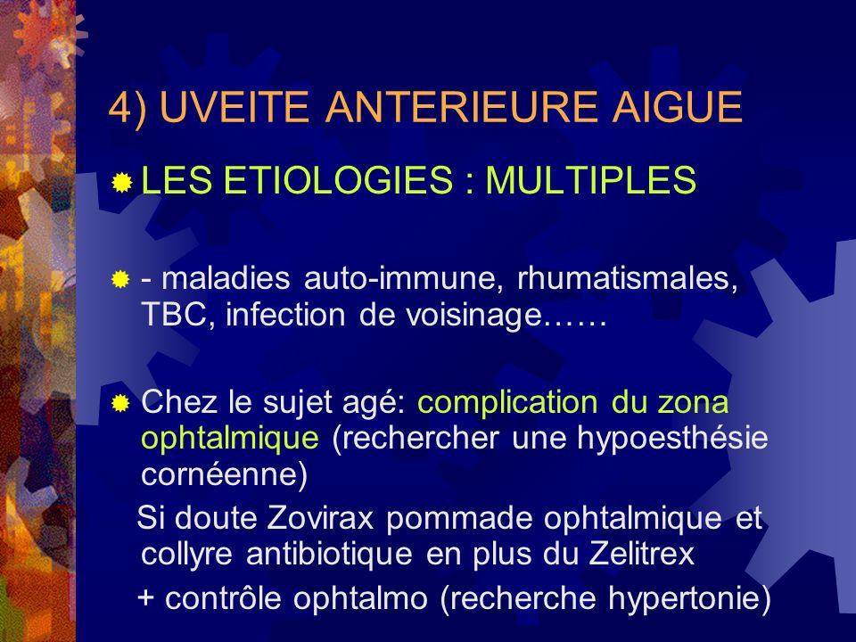 4) UVEITE ANTERIEURE AIGUE LES ETIOLOGIES : MULTIPLES - maladies auto-immune, rhumatismales, TBC, infection de voisinage…… Chez le sujet agé: complica
