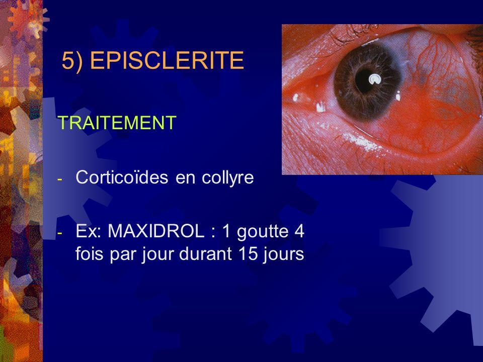 5) EPISCLERITE TRAITEMENT - Corticoïdes en collyre - Ex: MAXIDROL : 1 goutte 4 fois par jour durant 15 jours