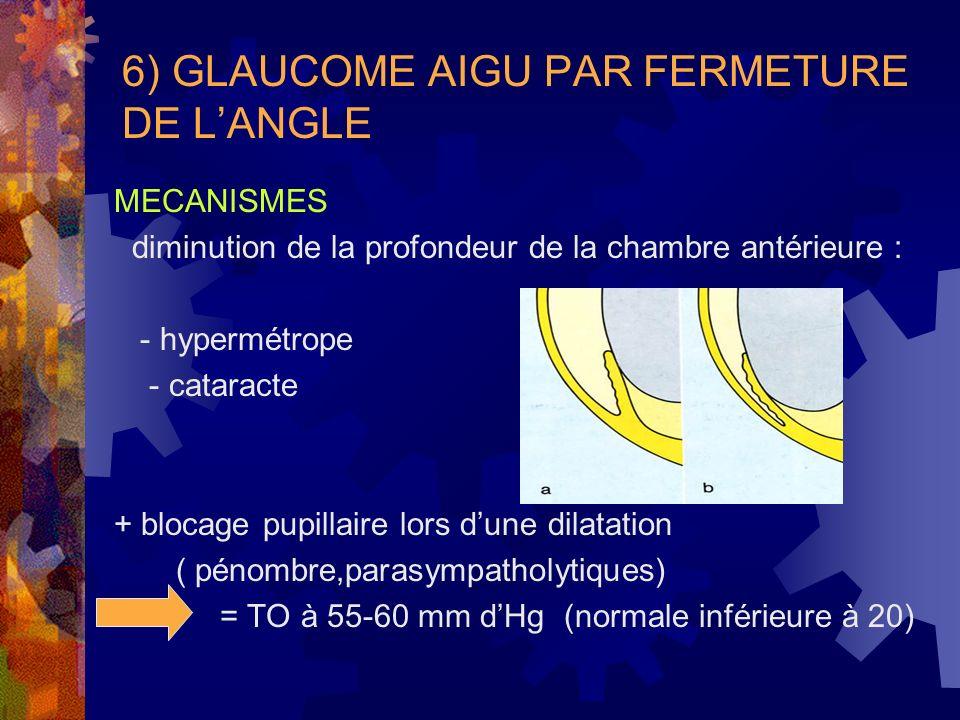 6) GLAUCOME AIGU PAR FERMETURE DE LANGLE MECANISMES diminution de la profondeur de la chambre antérieure : - hypermétrope - cataracte + blocage pupill