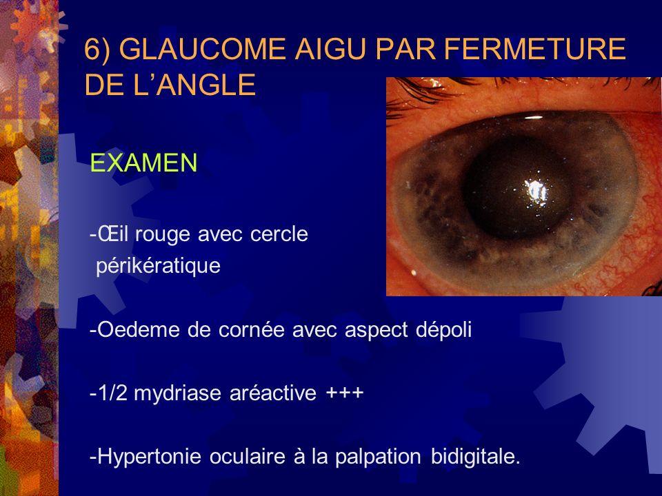6) GLAUCOME AIGU PAR FERMETURE DE LANGLE EXAMEN -Œil rouge avec cercle périkératique -Oedeme de cornée avec aspect dépoli -1/2 mydriase aréactive +++