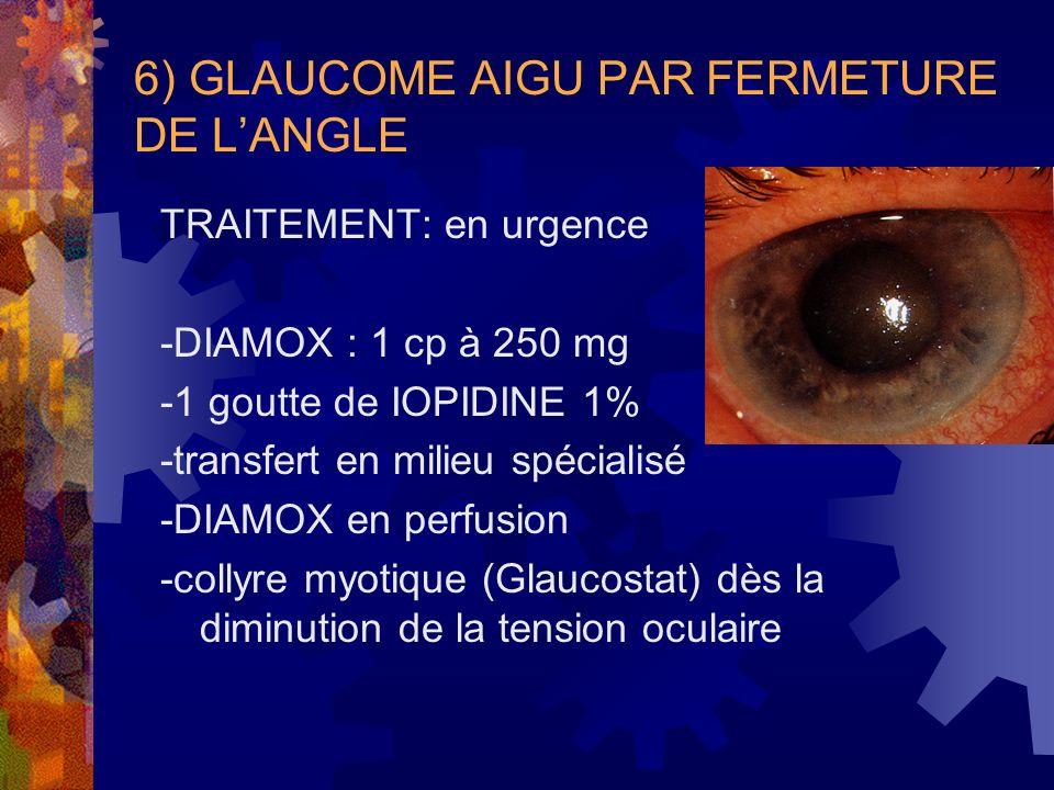 6) GLAUCOME AIGU PAR FERMETURE DE LANGLE TRAITEMENT: en urgence -DIAMOX : 1 cp à 250 mg -1 goutte de IOPIDINE 1% -transfert en milieu spécialisé -DIAM